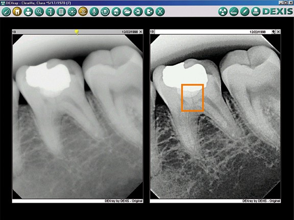 Dental On Park | Digital X-ray - Dentist Brisbane