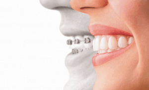 Picture of Invisalign braces