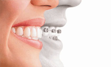 Dental On Park | Invisalign - Dentist Brisbane