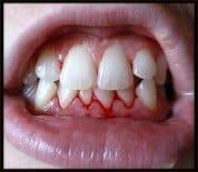 Bleeding Gums?