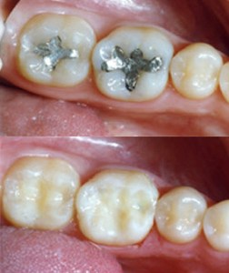 fillings-replace-252x300.jpg